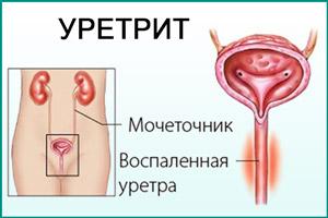 Воспаление уретры