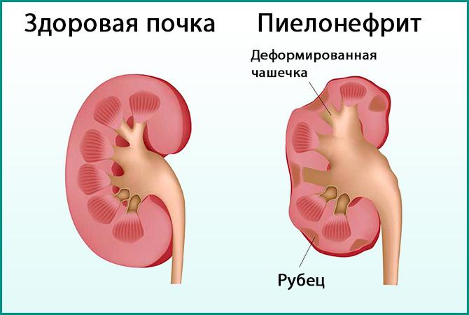Норма и пиелонефрит