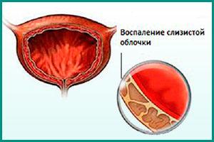 Воспаление слизистой мочевого пузыря