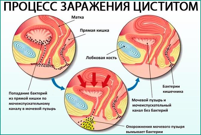 Процесс заражения циститом