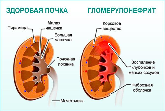 Почка с гломерулонефритом