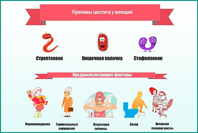 Лучевой цистит симптомы причины лечение