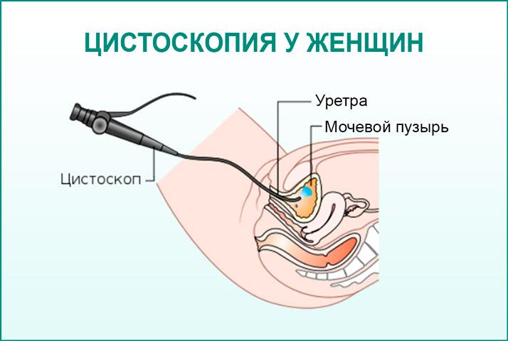 Цистоскопия у женщин