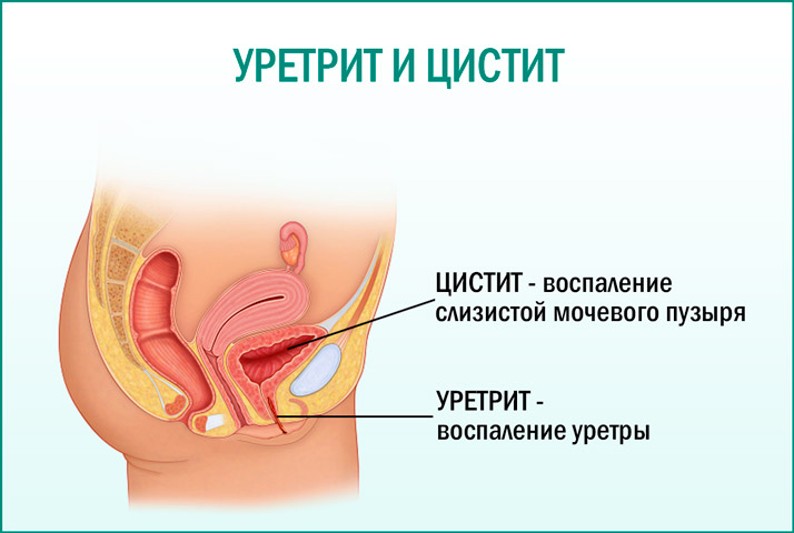 Отличие цистита от уретрита