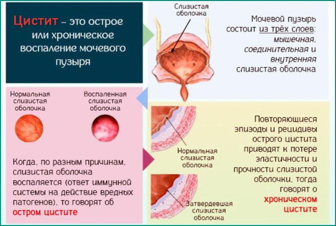 Симптомы и лечение цистита после алкоголя