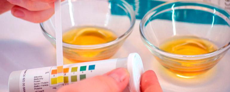 Цвет мочи при цистите и другие признаки заболевания. Какого цвета и запаха моча при цистите