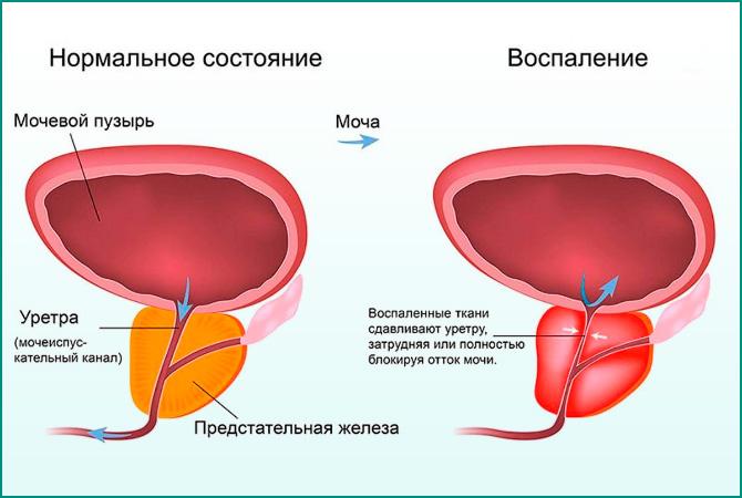 Нормальный мочевой пузырь и при цистите