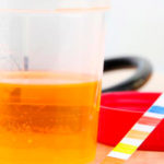 Как определить цистит по запаху урины
