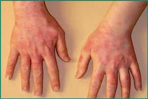 Аллергическая реакция на барсучий жир