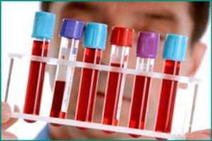 Общий анализ крови при простатите