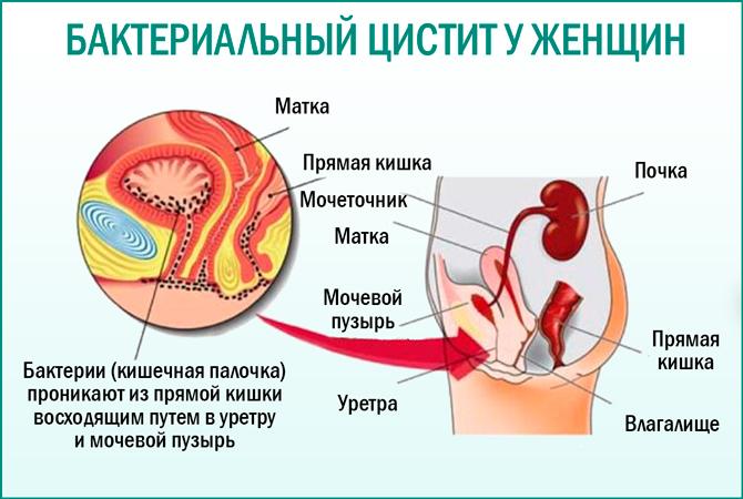 Воспаление стенок мочевого пузыря