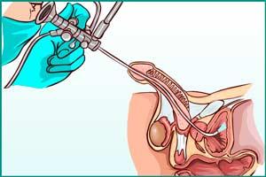 Цистоскопия при цистите