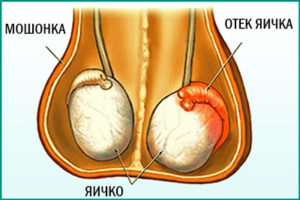 Склероз семенного бугорка