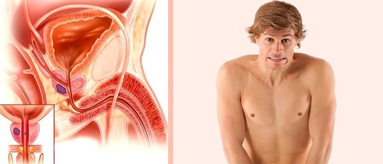 Хронический инфекционный простатит