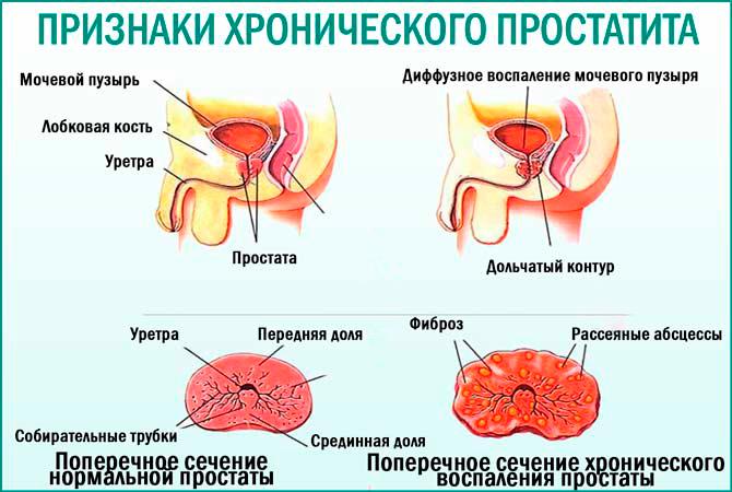 Стандарты в лечении хронического простатита