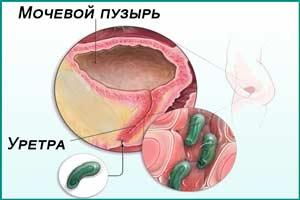 Инфекционный цистит у женщины