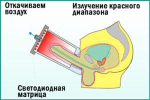 Электростимуляция предстательной железы