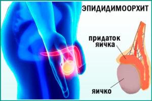 Воспалительный процесс - эпидидимоорхит
