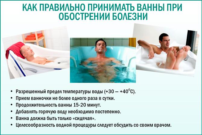Ванны при простатите: как правильно принимать