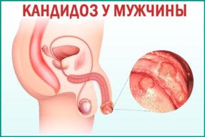 Молочница (кандидоз) у мужчин