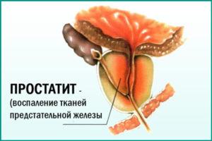 Заболевание предстательной железы