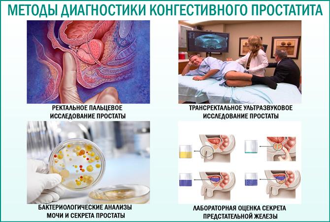 Конгестивный простатит: методы диагностики