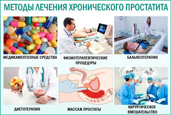 Хронический простатит: методы лечения