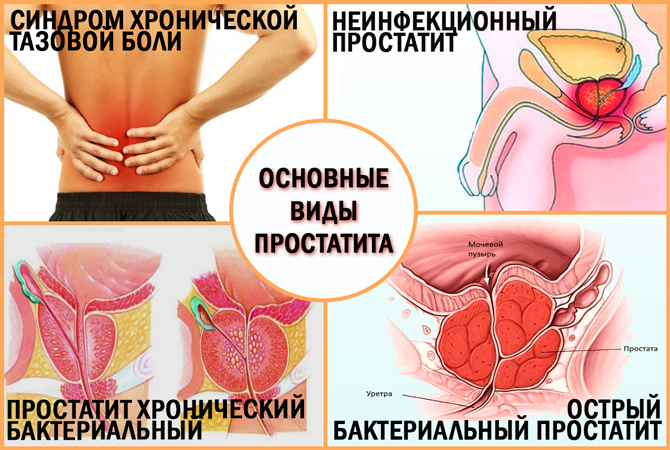 Виды простатита у мужчин