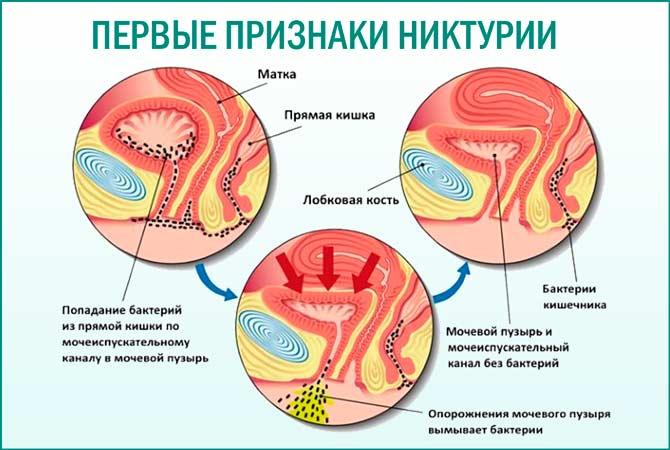 Первые симптомы никтурии
