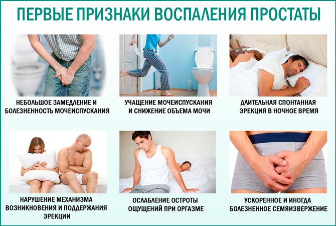 Признаки возникновения простатита