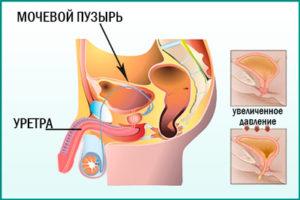 Давление на мочевой пузырь