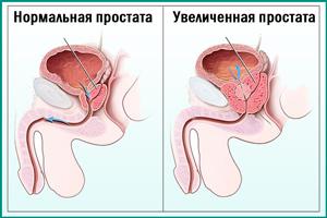 Развитие простатита у мужчины