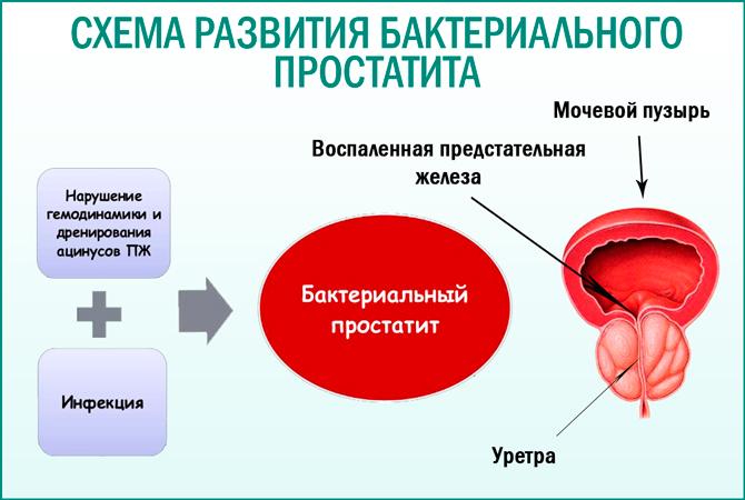 Бактериальный простатит: схема развития