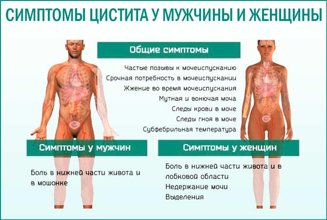 Цистит у мужчины и женщины: симптомы
