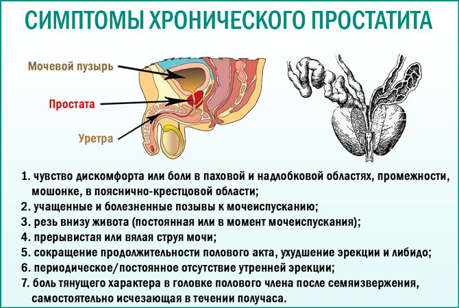 Хронический простатит: симптомы