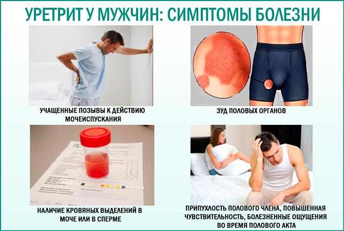 Мужской уретрит: симптомы
