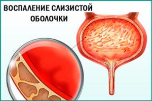 Цистит: воспаление слизистой оболочки мочевого пузыря