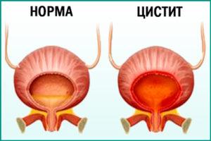 Мочевой пузырь: воспаление