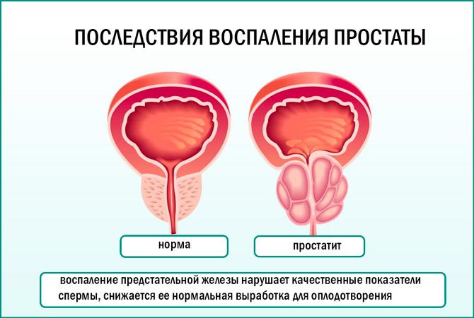Влияние воспаления простаты на эякулят