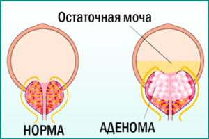 Что такое аденома простаты?