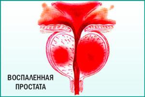 Что такое хронический простатит?