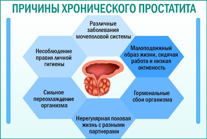 Основные причины болезни хронический простатит у мужчин