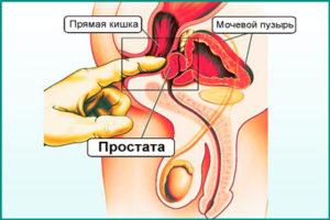 Профилактика и лечение простатита