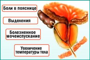 Бактериальный простатит: симптомы