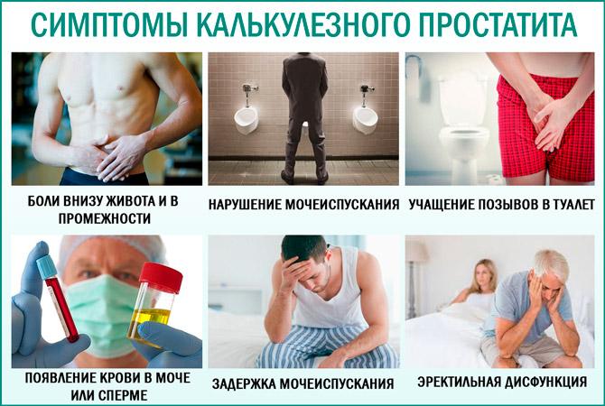 Калькулезный простатит: симптомы