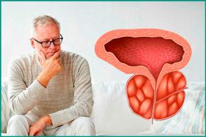 Воспаление простаты: симптомы