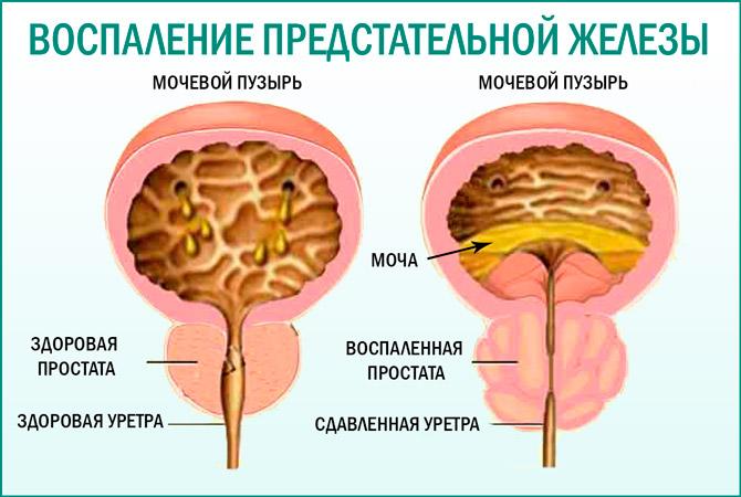 Причины симптоматика и лечение острого простатита