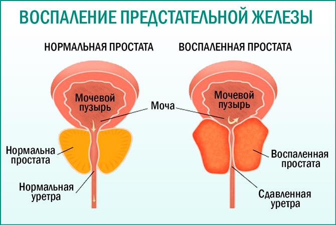 Простатит или воспаление предстательной железы