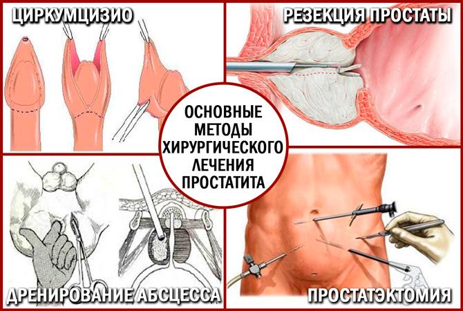 Виды оперативного лечения простатита