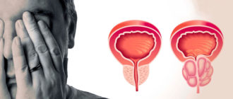 острое воспаление предстательной железы